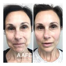 Before after botox for expression lines