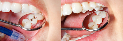 Before and after composite fillings